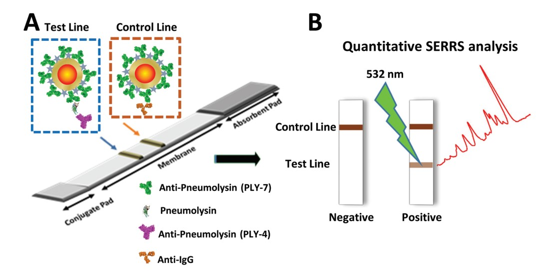 Au@Ag SERRS tags coupled to a lateral flow immunoassay for the sensitive detection of Pneumolysin